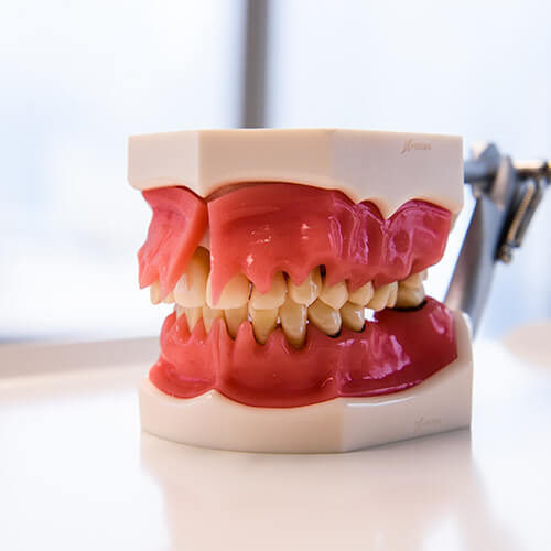 Plastic model of a persons teeth with long thick gums.