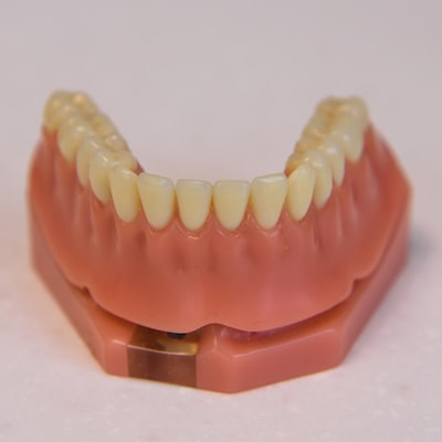 Dental implants in San Francisco can be used to permanently fix dentures to your gum line