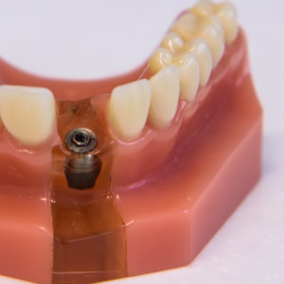 Example of a Dental Implants in San Francisco on a fake gumline
